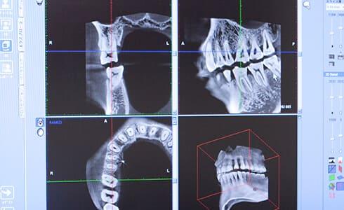 CTによる正確な診査診断