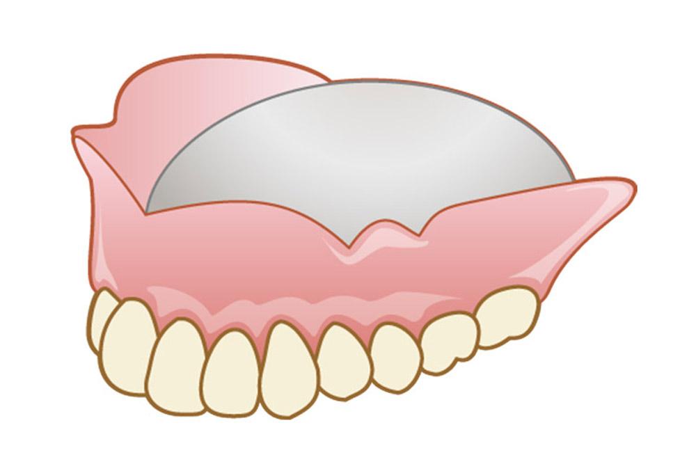 マイクロスコープを使用した虫歯治療