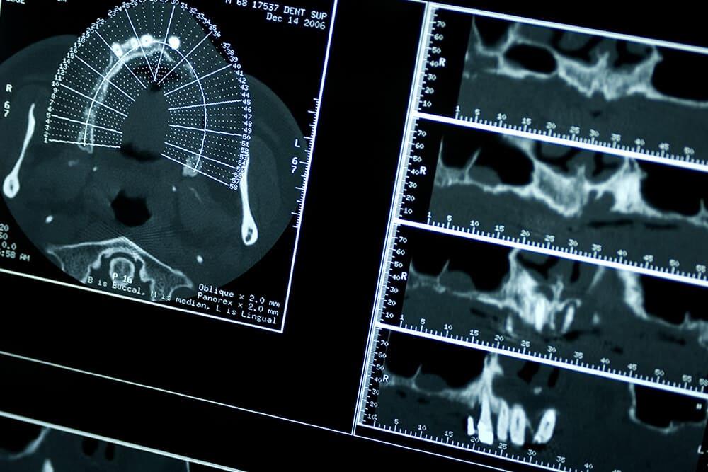 歯科用CTによる精密検査