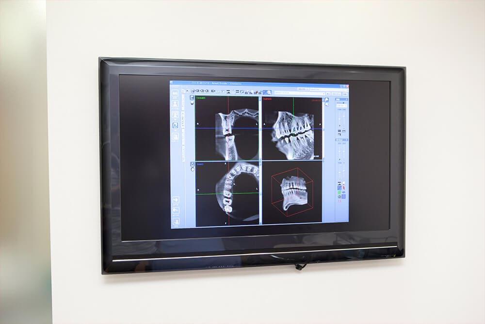 歯科用CTで正確な診査診断をいたします