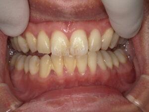 恵比寿駅 徒歩3分の歯医者 恵比寿南DENTAL 歯周病