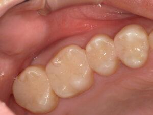 恵比寿駅 徒歩3分の歯医者 恵比寿南DENTAL セラミック治療
