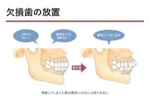 恵比寿駅 徒歩3分の歯医者 恵比寿南DENTAL インプラント治療